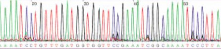 Section of DNA Sequence Trace